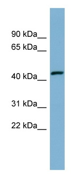 Western blot - Anti-EFCAB4B antibody (ab98040)