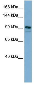 Western blot - Anti-FAM62B antibody (ab98049)