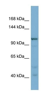 Western blot - Anti-COPG2 antibody (ab98055)