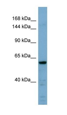 Western blot - Anti-Cadherin like 23 antibody (ab98059)