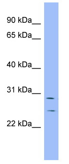 Western blot - Anti-HEY1 antibody (ab98072)