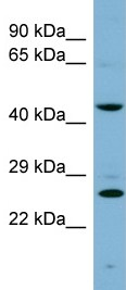 Western blot - Anti-VPS28 antibody (ab98096)