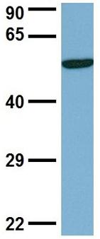 Western blot - Anti-DCTN4 antibody (ab98098)