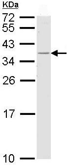 Western blot - Anti-HLA Class II DRB1 antibody (ab98108)
