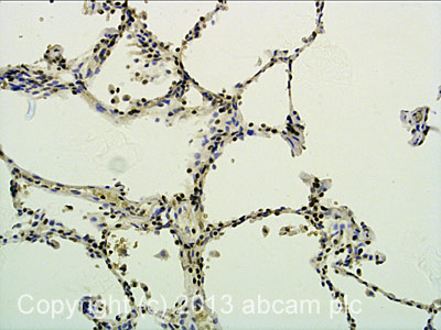 Immunohistochemistry (Formalin/PFA-fixed paraffin-embedded sections) - Anti-BATF3 antibody (ab98141)