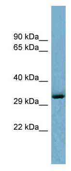Western blot - Anti-OTUD6B antibody (ab98162)