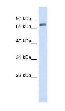 Western blot - Anti-TRIM41 antibody (ab98170)