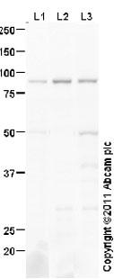 Western blot - Anti-Frizzled 6 antibody (ab98180)