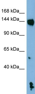 Western blot - Anti-NALP1 antibody (ab98181)