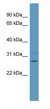 Western blot - Anti-Phosphoserine phosphatase antibody (ab98186)
