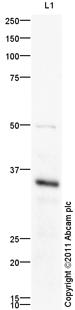 Western blot - Anti-FCGRT antibody (ab98201)