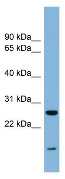 Western blot - Anti-TRAPPC4 antibody (ab98219)