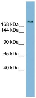 Western blot - Anti-SETBP1 antibody (ab98222)