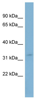 Western blot - Anti-SLC25A20 antibody (ab98227)