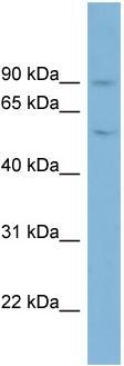 Western blot - Anti-Plasminogen antibody (ab98262)
