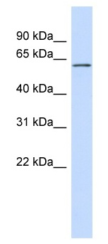 Western blot - Anti-FCRL4 antibody (ab98279)