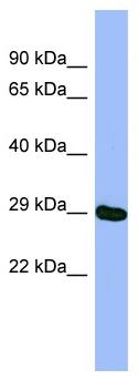 Western blot - Anti-Methyltransferase like 5 antibody (ab98314)