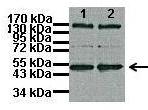 Western blot - Anti-Tbp7 antibody (ab98330)