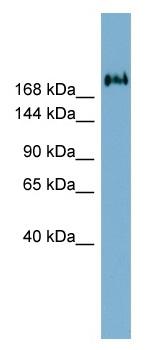 Western blot - Anti-TMEM2 antibody (ab98348)