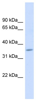 Western blot - Anti-FAM26F antibody (ab98871)