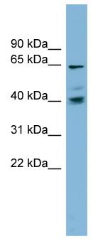 Western blot - Anti-TM9SF4 antibody (ab98879)