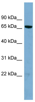 Western blot - Anti-HP1BP3 antibody (ab98894)