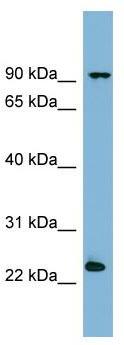 Western blot - Anti-VPS29 antibody (ab98929)