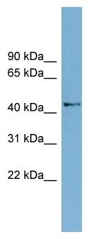 Western blot - Anti-AMDHD1 antibody (ab98937)