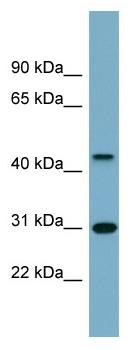 Western blot - Anti-ARMCX3 antibody (ab98938)