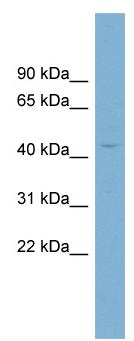 Western blot - CRBN antibody (ab98992)