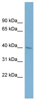 Western blot - Anti-A4GALT antibody (ab98998)