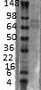 Western blot - Anti-Kv4.3 antibody [S75-41] (ab99045)