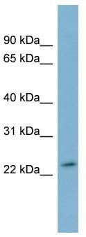 Western blot - Anti-DUXA antibody (ab99058)