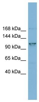 Western blot - Anti-CCDC87 antibody (ab99061)
