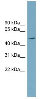 Western blot - Anti-LANCL2 antibody (ab99083)
