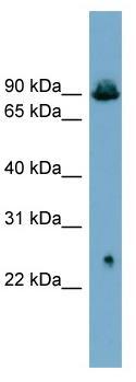 Western blot - Anti-Glyt2 antibody (ab99098)