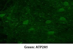 Immunocytochemistry/ Immunofluorescence - Anti-SERCA1 ATPase antibody (ab99103)
