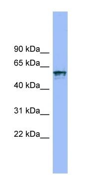 Western blot - Anti-IL18R1 antibody (ab99118)
