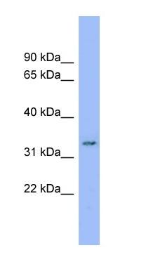 Western blot - Anti-DDRGK1 antibody (ab99121)