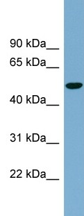 Western blot - Anti-Glucose Transporter 8 antibody (ab99132)