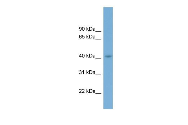 Western blot - Anti-CGR19 antibody (ab99174)