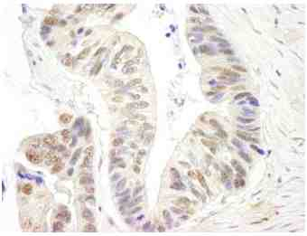 Immunohistochemistry (Formalin/PFA-fixed paraffin-embedded sections) - Anti-XPG antibody (ab99248)