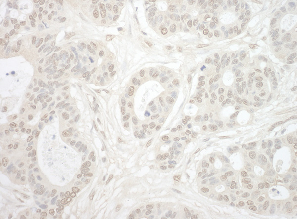 Immunohistochemistry (Formalin/PFA-fixed paraffin-embedded sections) - Anti-Importin4 antibody (ab99270)