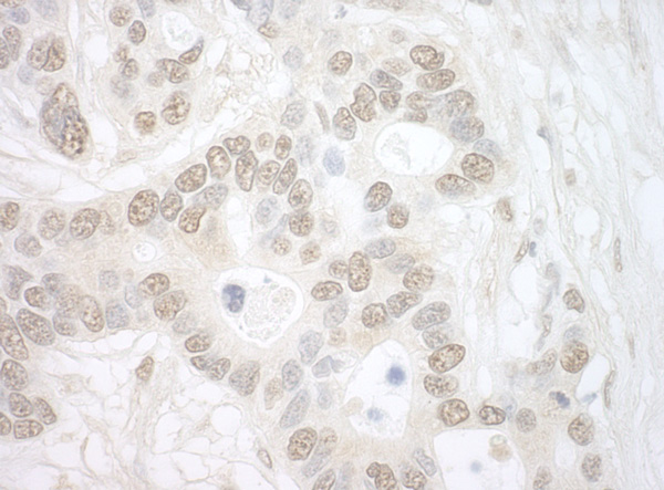 Immunohistochemistry (Formalin/PFA-fixed paraffin-embedded sections) - Anti-Importin4 antibody (ab99271)