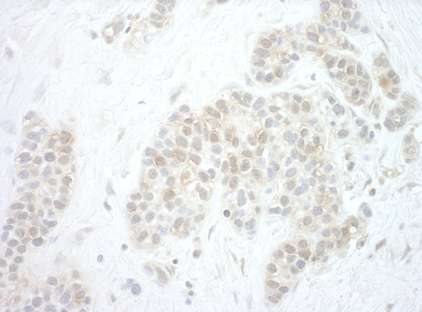 Immunohistochemistry (Formalin/PFA-fixed paraffin-embedded sections) - Anti-Pygopus 2 antibody (ab99275)