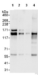 Western blot - Anti-AZI1 antibody (ab99315)