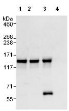 Immunoprecipitation - Anti-AZI1 antibody (ab99315)