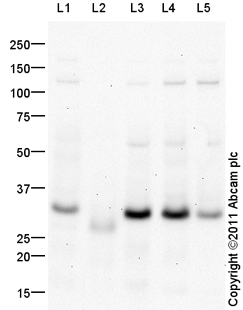 Western blot - Anti-CITED2 antibody (ab99335)