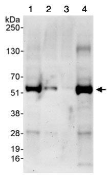 Western blot - Anti-pre-mRNA cleavage factor I (59 kDa subunit) antibody (ab99348)