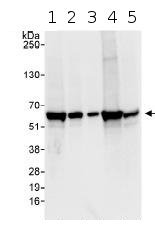 Western blot - Anti-CORO1B antibody (ab99407)